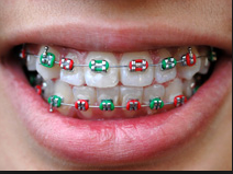 braces Orthodontic treatment